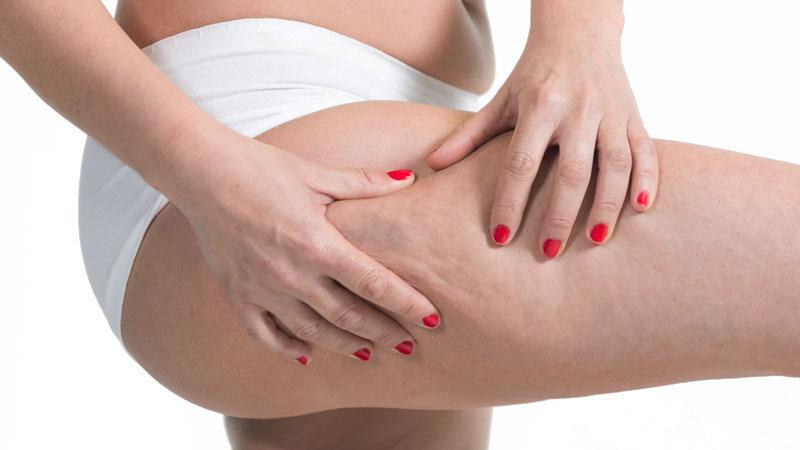 bodycience, problemas relacionados, Celulite