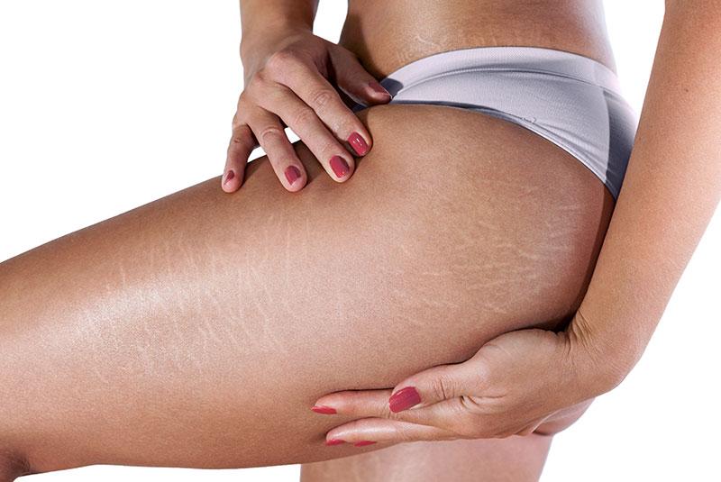 bodyscience-clinica-estetica-problemas-corpo-mulher-estrias-metodo-1