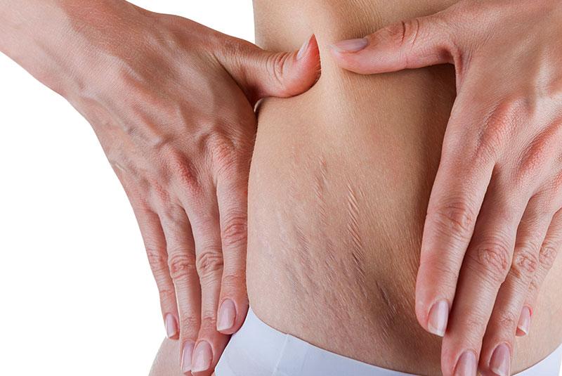 bodyscience-clinica-estetica-problemas-corpo-mulher-estrias-metodo-2