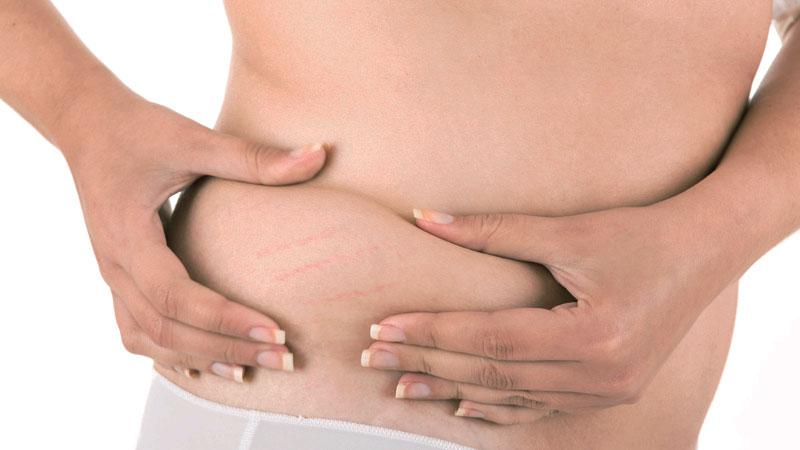 bodyscience-clinica-estetica-problemas-corpo-mulher-estrias-thumb