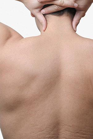 bodyscience-clinica-estetica-problemas-corpo-homem-estrias-metodo-2