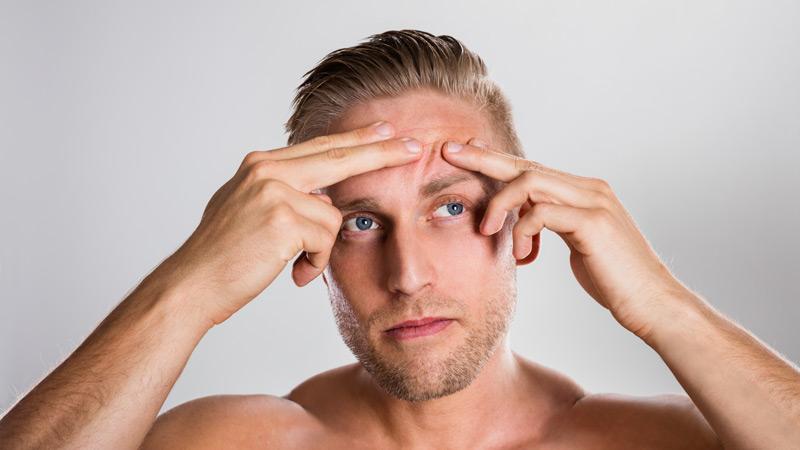 bodycience, problemas relacionados, Acne