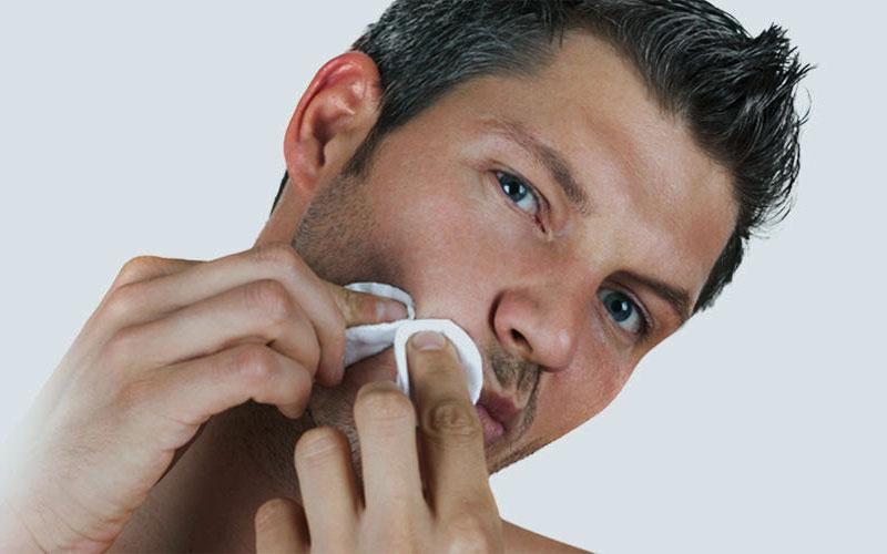 bodyscience-clinica-estetica-problemas-rosto-homem-marcas-acne-metodo-1