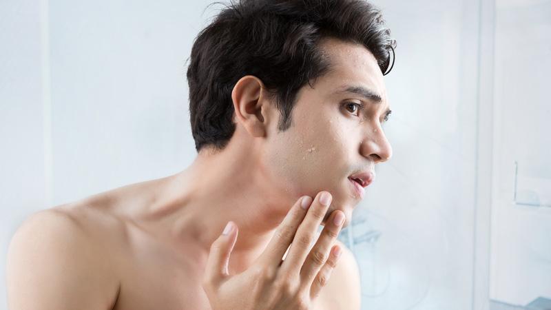 bodycience, problemas relacionados, Marcas de Acne