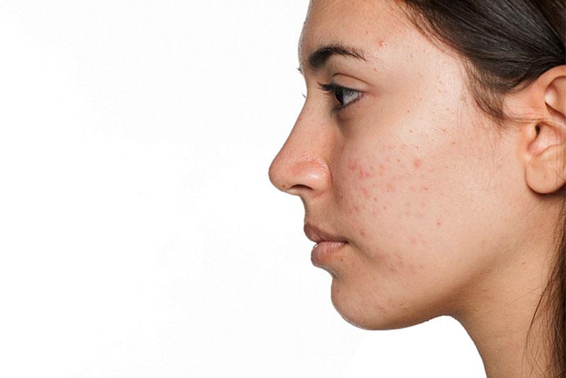 bodyscience-clinica-estetica-problemas-rosto-mulher-acne-metodo-3
