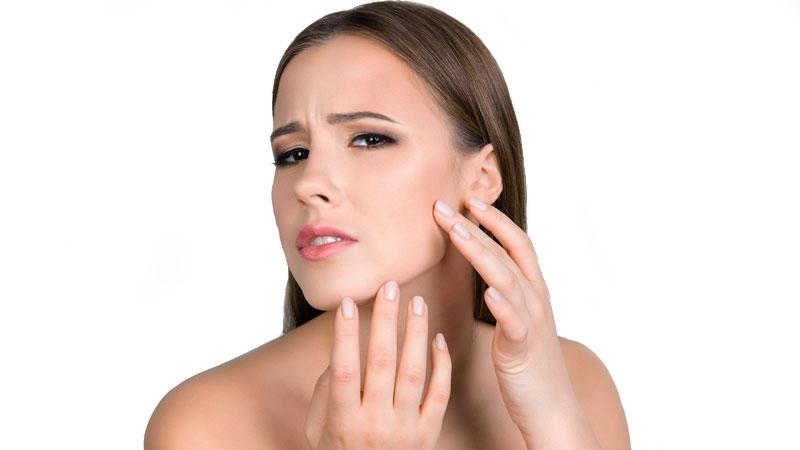 bodyscience-clinica-estetica-problemas-rosto-mulher-marcas-acne-thumb