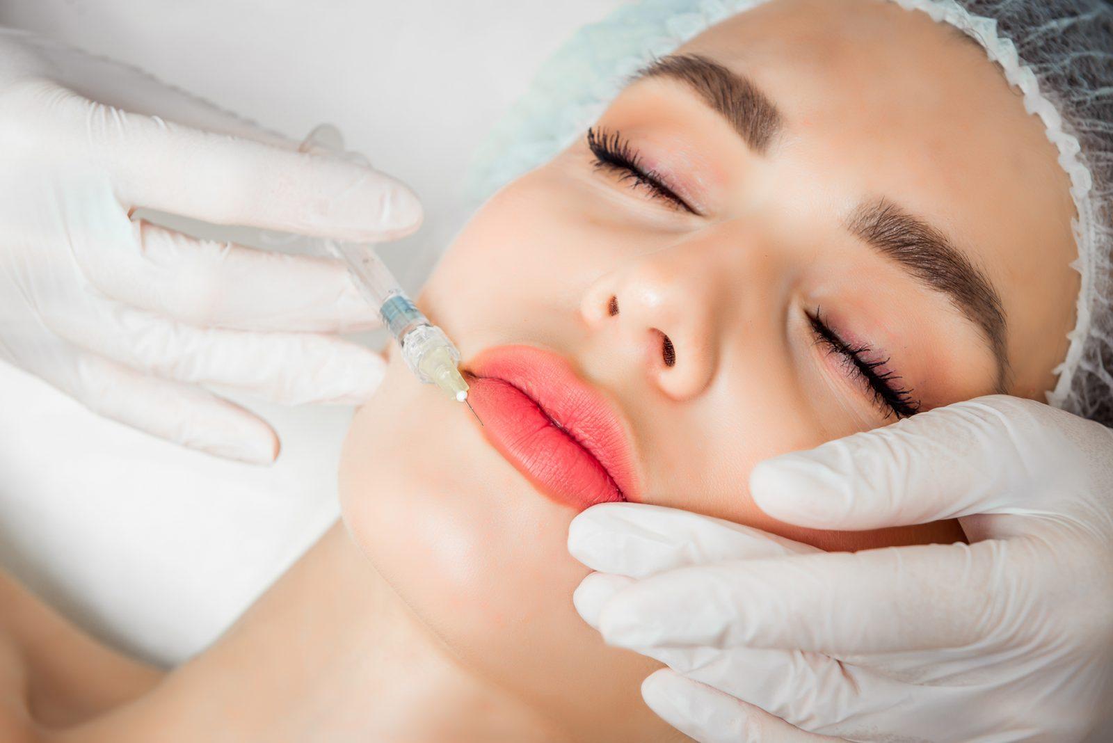 bodycience, tratamentos, Preenchimento de lábios