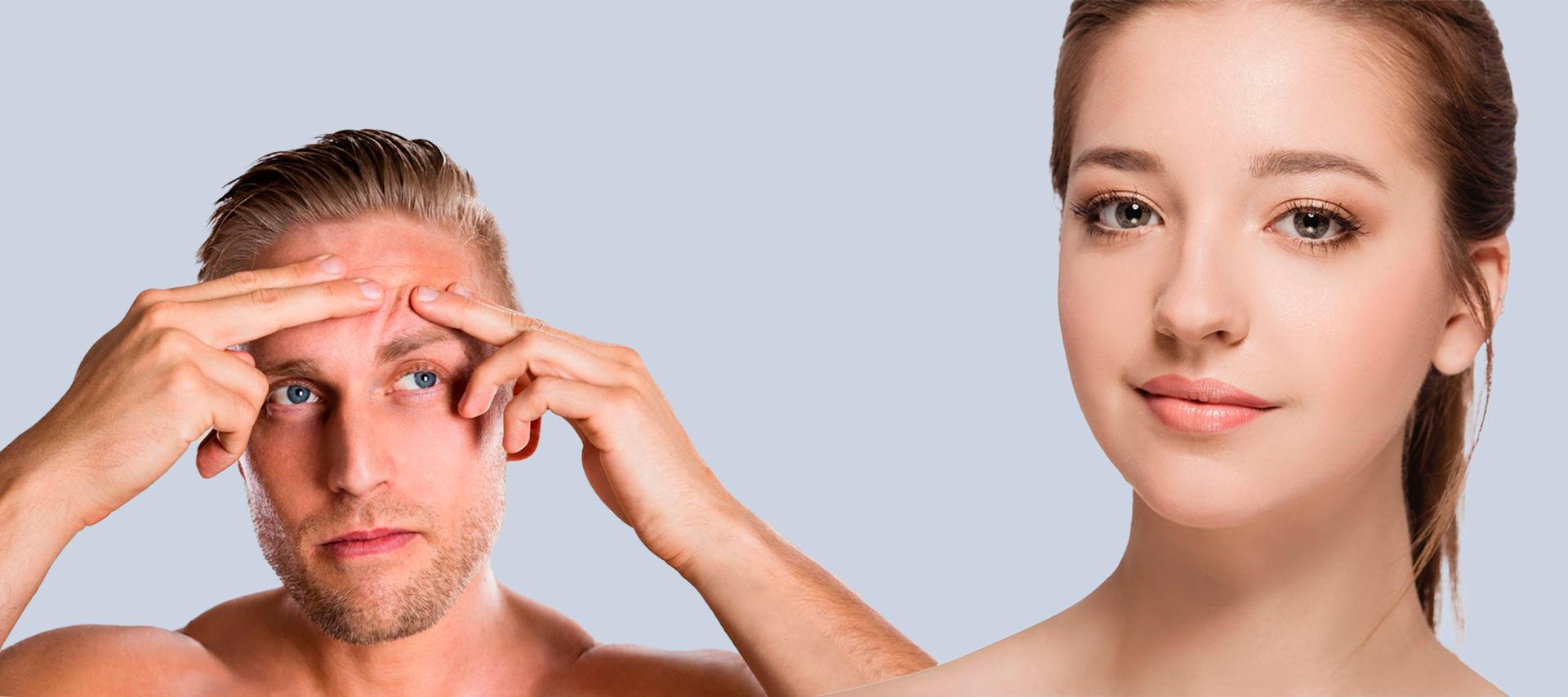 BodyScience, tratamentos, Acne