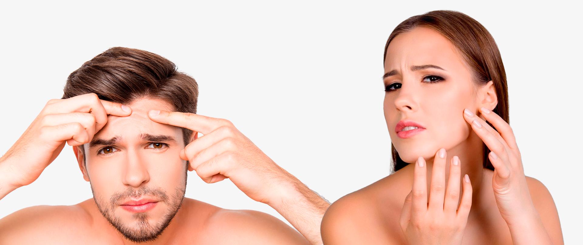 BodyScience, tratamentos, Marcas de Acne