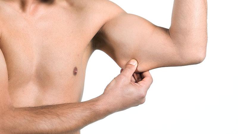 Clínicas BodyScience - Flacidez